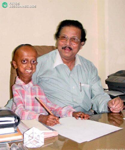 a99007_SRP_ProgeriaDrSekhar_Boy