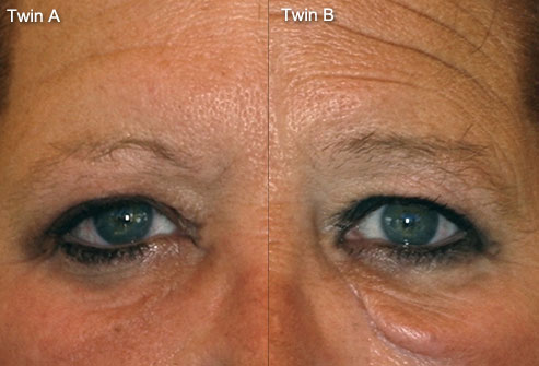 case-medical_study_photo_of_twins_11_closeup