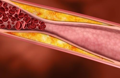 Colesterol1-500x3251