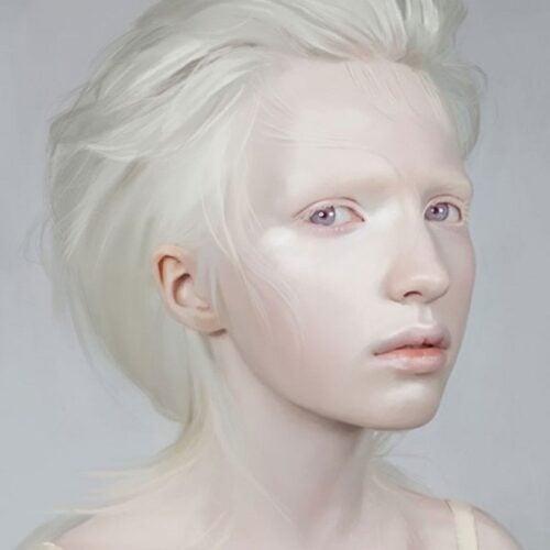 albino 12