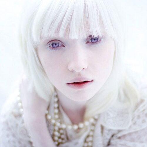 albino 16