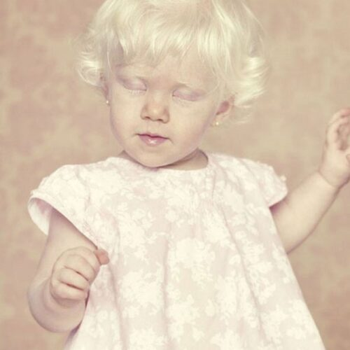 albino 5
