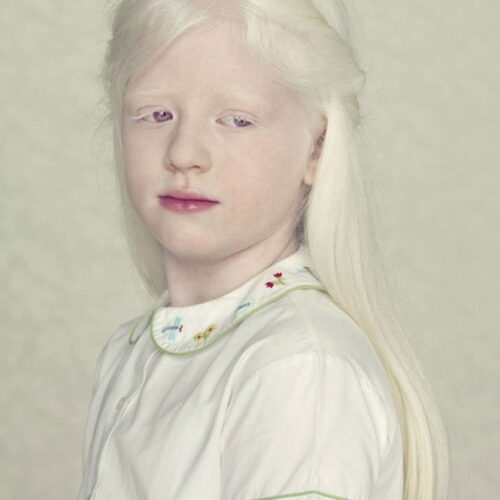 albino 6