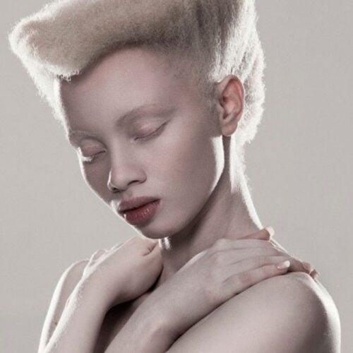 albino 7