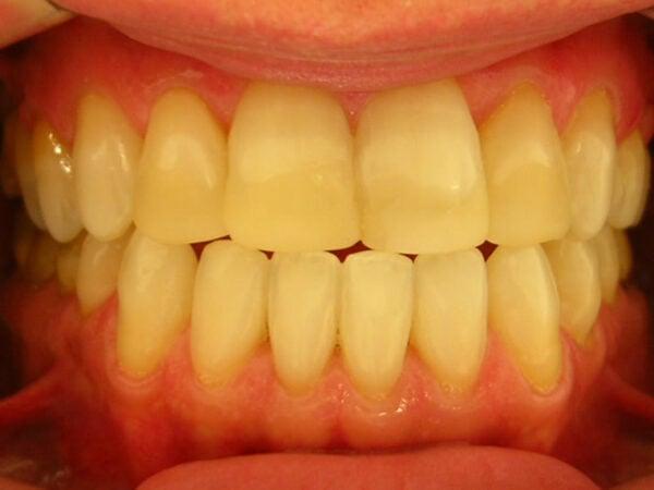 dente-amarelado