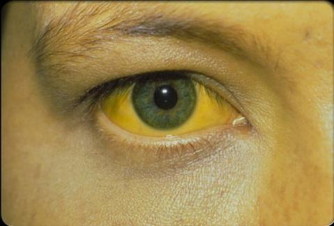 hepatitis-s2-person-with-jaundice