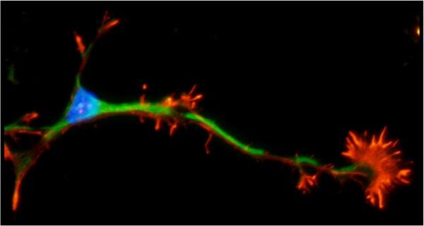 thalamic neuron