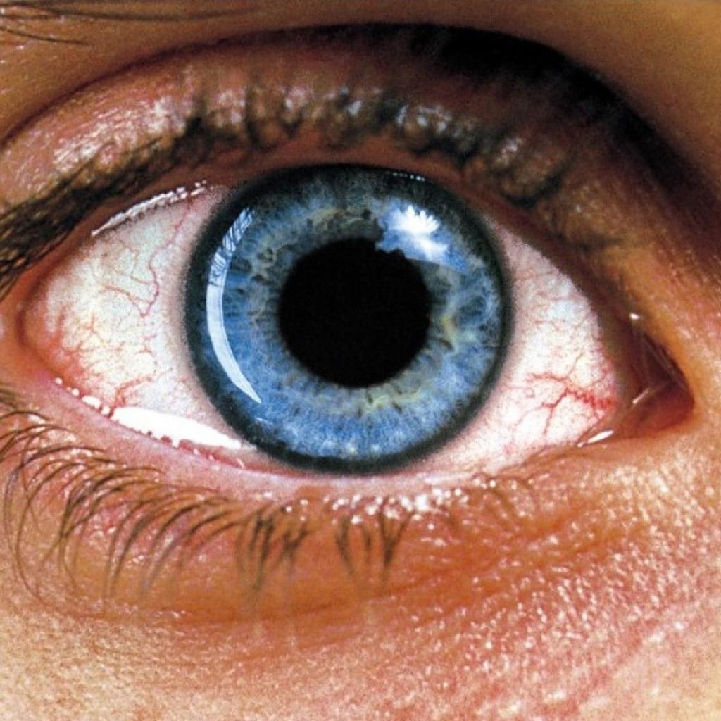 Requiem-Para-Um-Sonho-pupila-dos-olhos-1024x1024