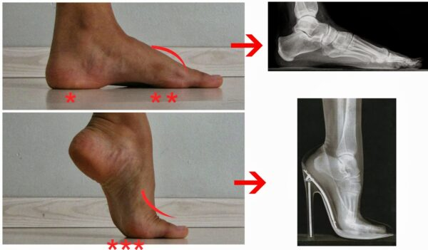 Salto-alto-problemas-coluna-pes-ortopedia