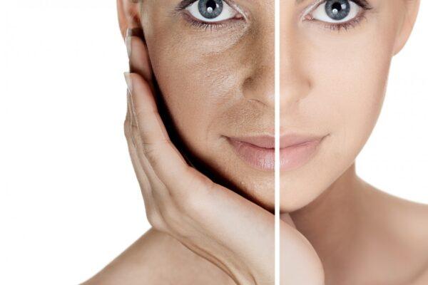 bigstock-Woman-with-spotty-skin-with-de-31936871-1050x700