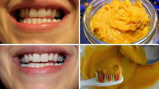 7 Truques Para Deixar Os Dentes Mais Brancos