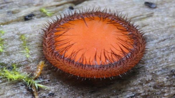 Eyelash Cup Fungus1