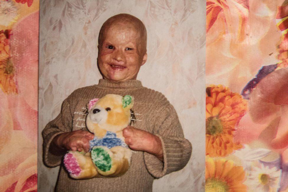 Tem Na Web - A história de superação de Lyoshoa, o menino que foi jogado no forno pelo pai