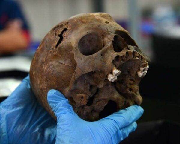 The skull of the Aztec child sacrifice