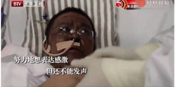 Chineses estão mudando de cor após infecção pelo Covid-19 - Imagem 1